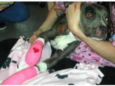 Valentine recovering from her injuries before  receiving prostheticsfor her injured limbs